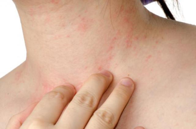 terapia natural para mejorar piel seca e irritada